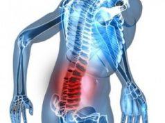 gejala-kanker-tulang