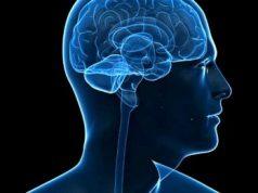 Degenerasi Otak