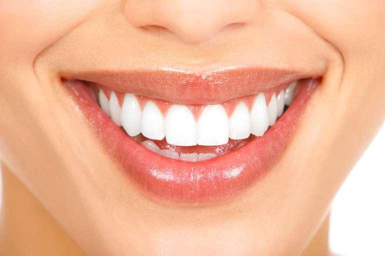 Cegah Plak Pada Gigi Dengan Cara Ini 103 8 Fm Brava Radio